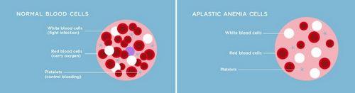 Apa Itu Hipoplasia? bayi baru lahir, bayi dengan