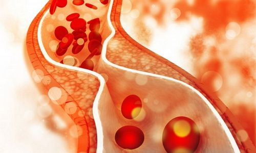 Cara Mencegah Gejala Batu Ginjal - 4 Tips Agar Tetap Sehat Aktivitas fisik