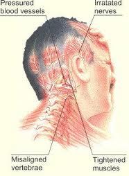Pengobatan Kanker Kepala Dan Leher Ada kemungkinan beberapa kanker menyebabkan