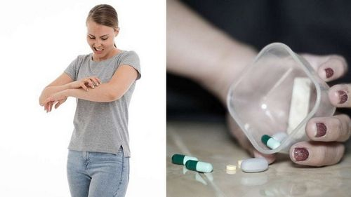Penyebab Sindrom Tietzkes dan Cara Mengobatinya Salah satu pengobatan alami yang