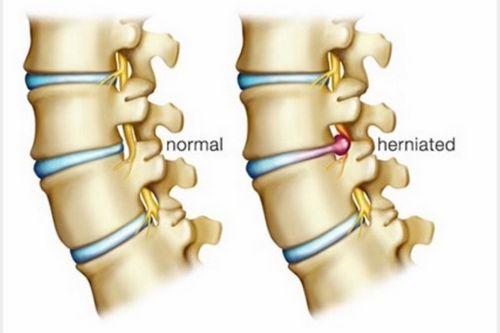 Stenosis Tulang Belakang - Apakah Ini dan Apakah Ini Diobati diperhatikan bahwa